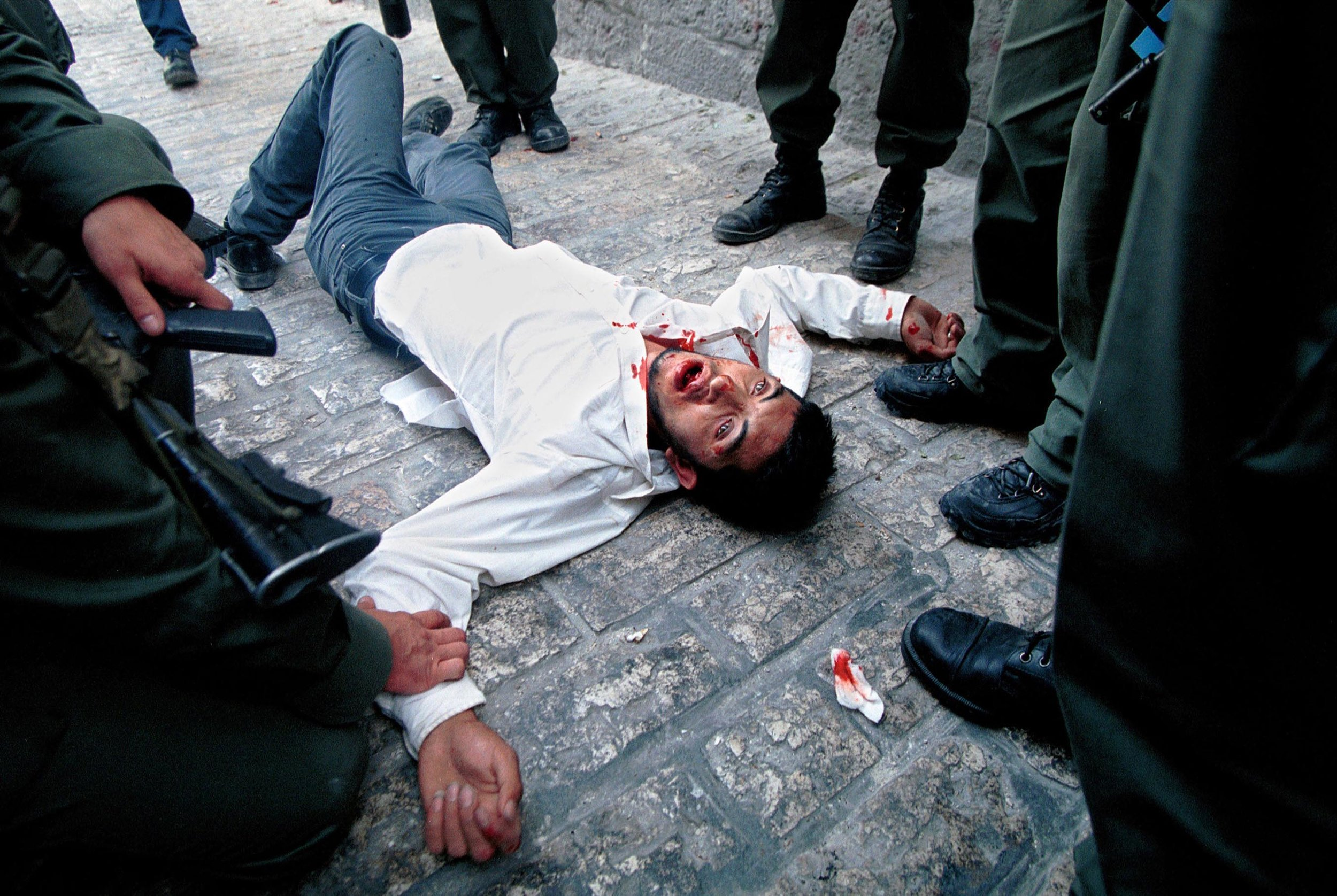 2001- A Palestinian man lies wounded and surrounded by Israeli police after being shot in the mouth by a rubber coated metal bullet during clashes in east Jerusalem.