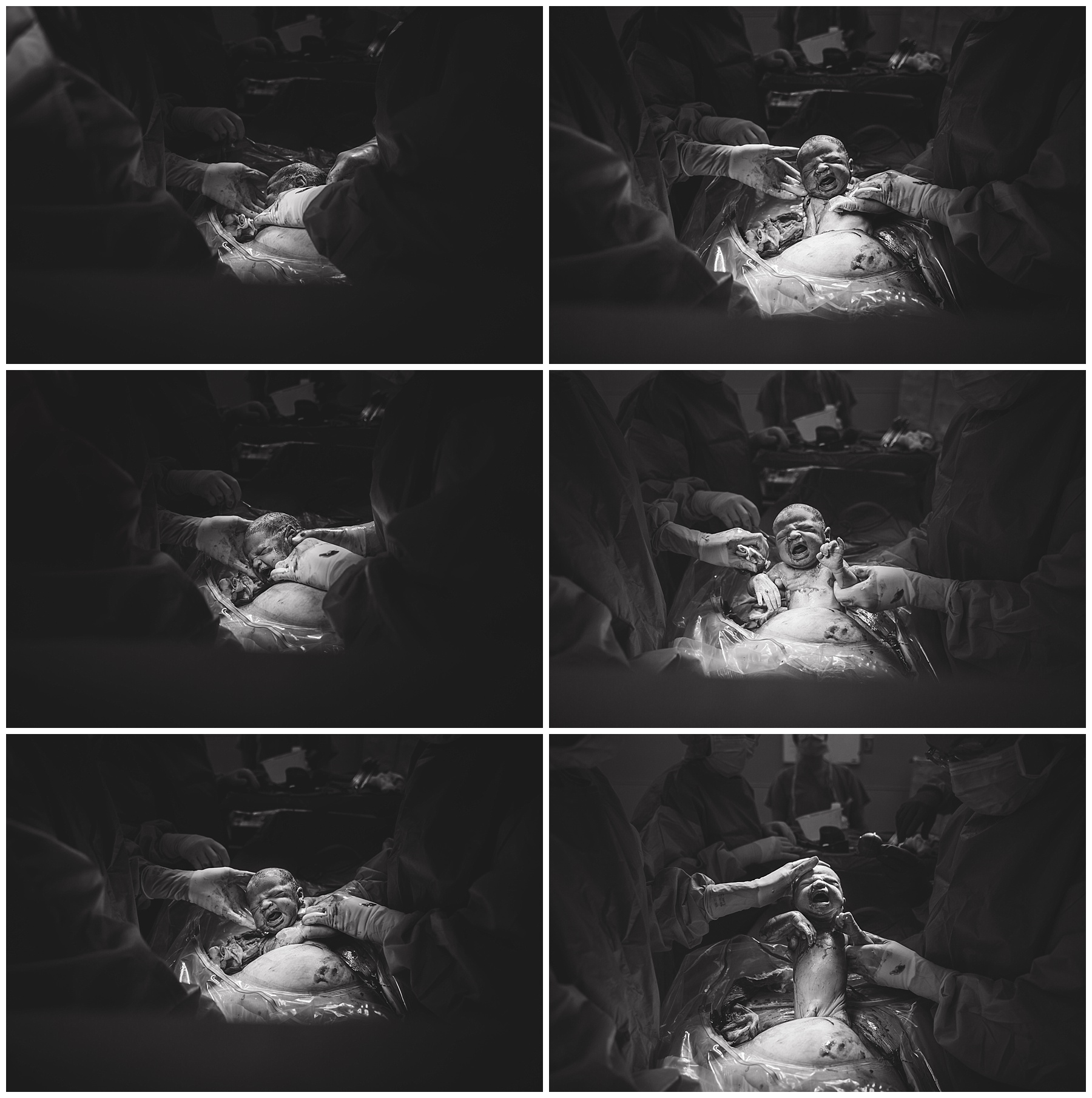 A series of images of a cesarean birth