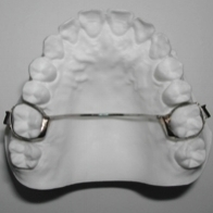 The  Palatal Bar  is a space maintaining appliance. It consists of two metal bands attached to the upper first molars, connected by a wire that runs along the top of your mouth. The purpose of this appliance is to prevent your upper molars from moving. The palatal bar is not removable.