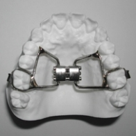 A  Palatal Expander  is made of metal and fits in the roof of your mouth. It attaches to bands that are custom fit and cemented to your upper first molars. This expander increases the width of the upper jaw, which is accomplished by turning the screw in the center of the appliance, over a period of time, as directed by the doctor. The Palatal Expander is not removable.