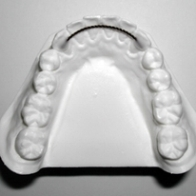 A  Bonded Retainer  is designed to maintain the new position of your teeth. They might be placed alongside the inside of the upper or lower front teeth. These retainers are not removable. Proper brushing and flossing under the bonded retainers is critical to maintaining healthy teeth and gums.