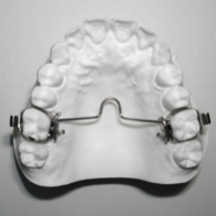 The  Gosh Bar  is a wire that attaches to the upper first molar bands. It adapts to the top of the mouth and holds the molar's position during orthodontic treatment. It also expands and rotates the molars in certain situations. This appliance is not removable.