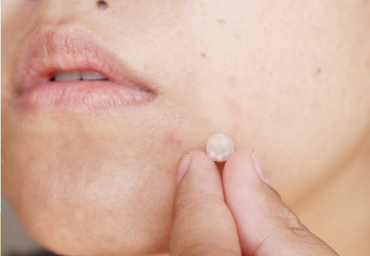 Rational Benefit - Heals acne while limiting the apperance and duration of your break out.