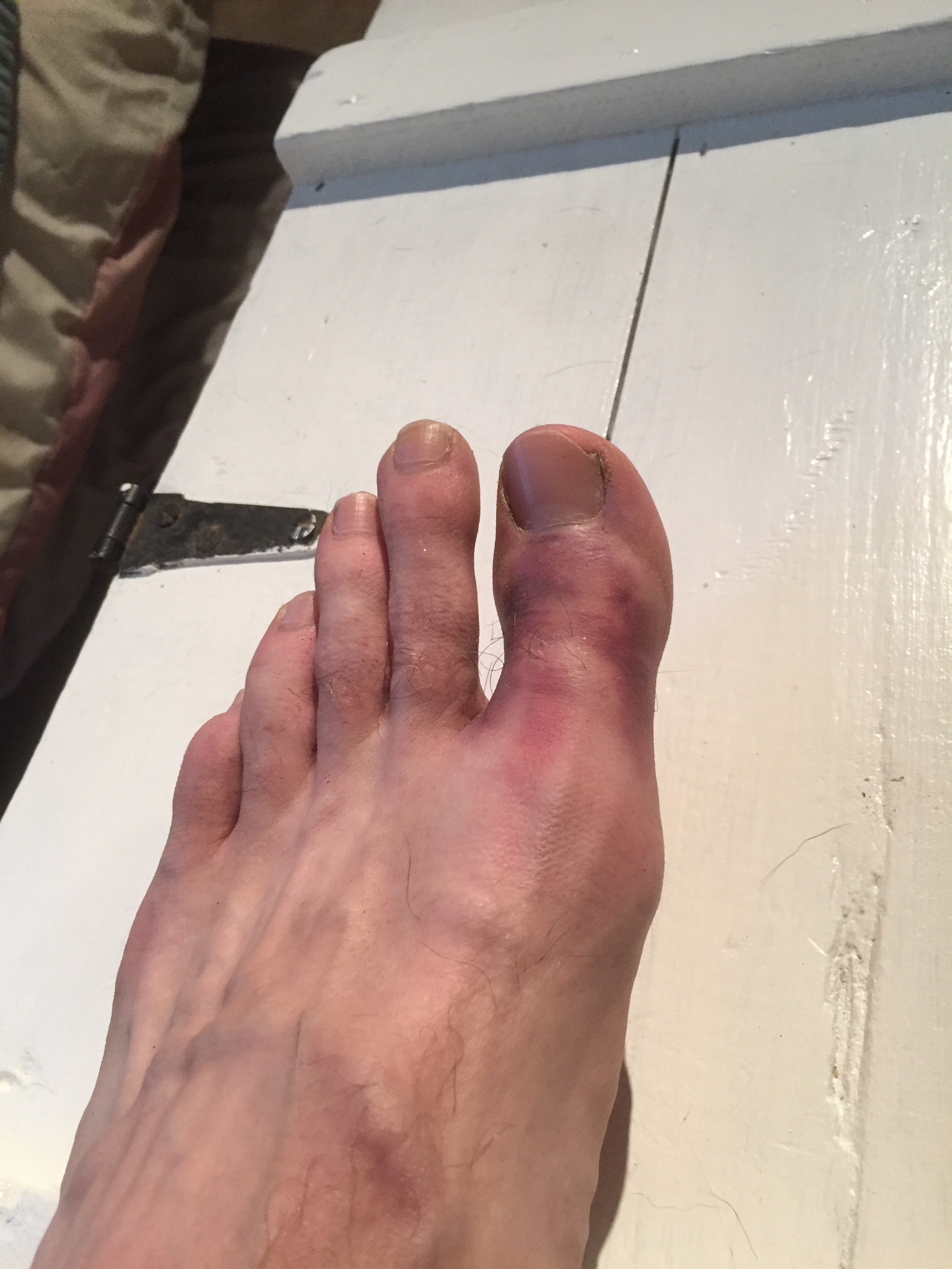 What's up broken toe, 6:31 50K, that's what!