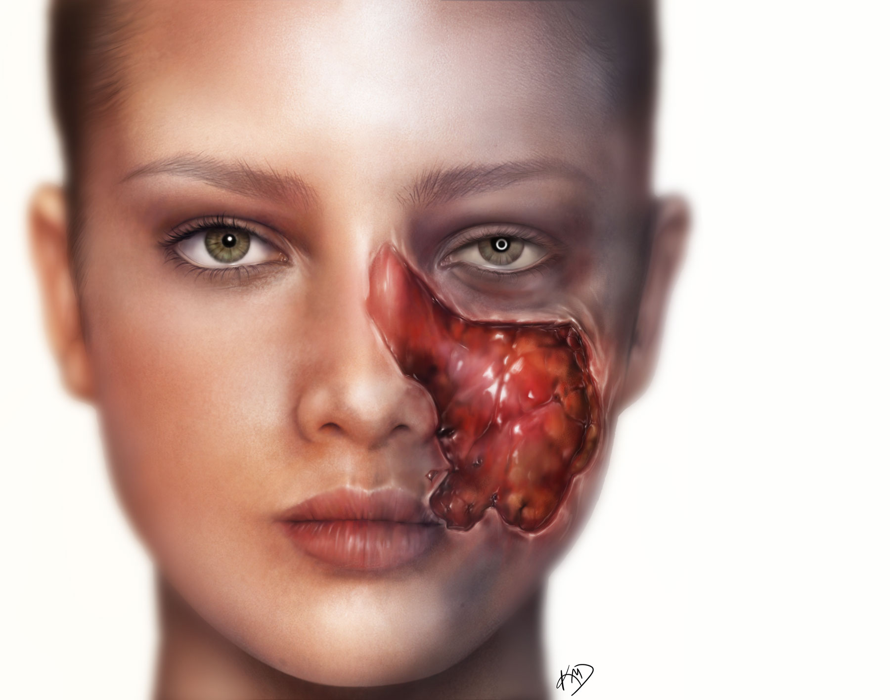 Skin cancer concept