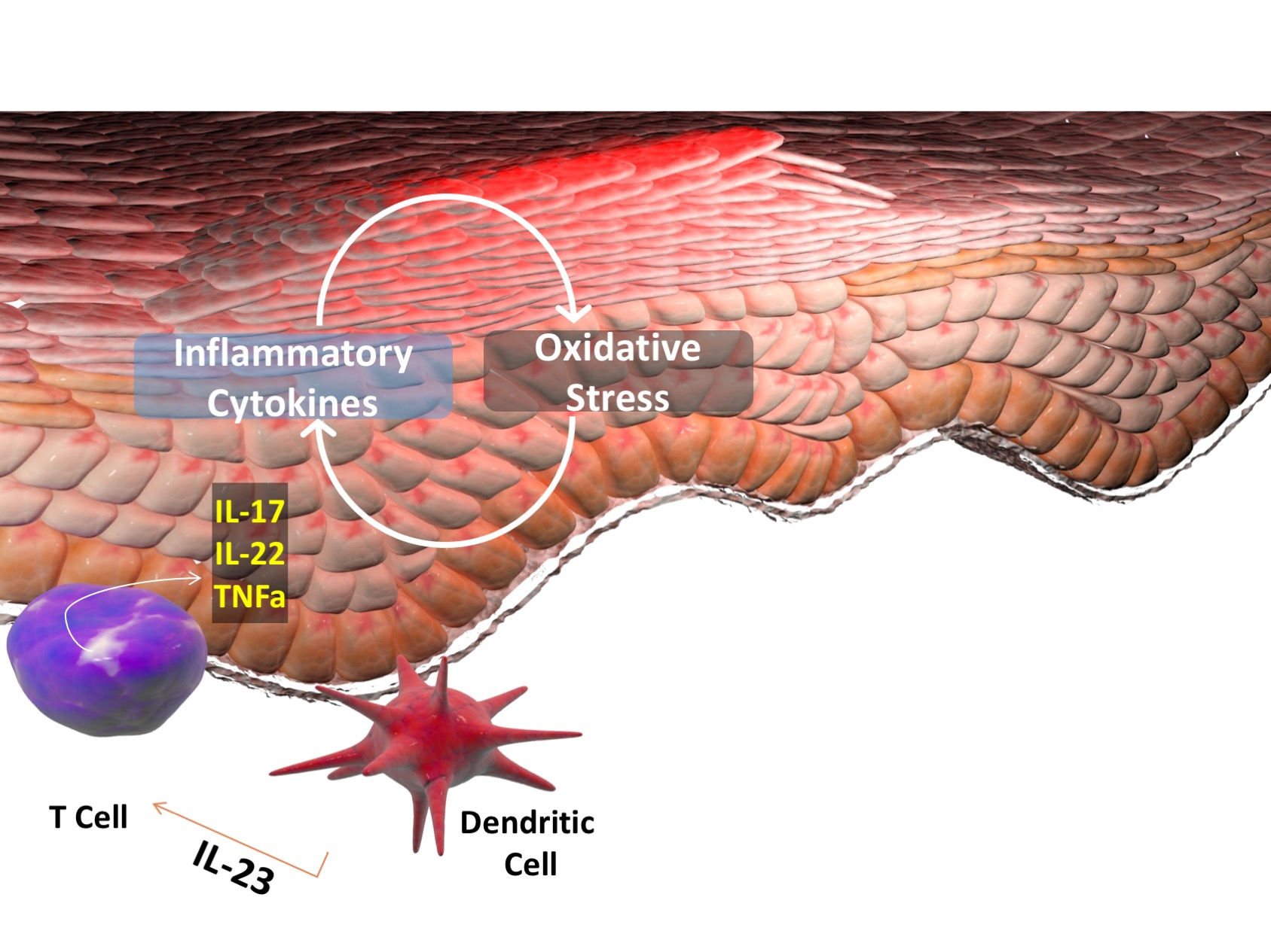 In Psoriasis, multiple inflammatory cytokines cause oxidative stress