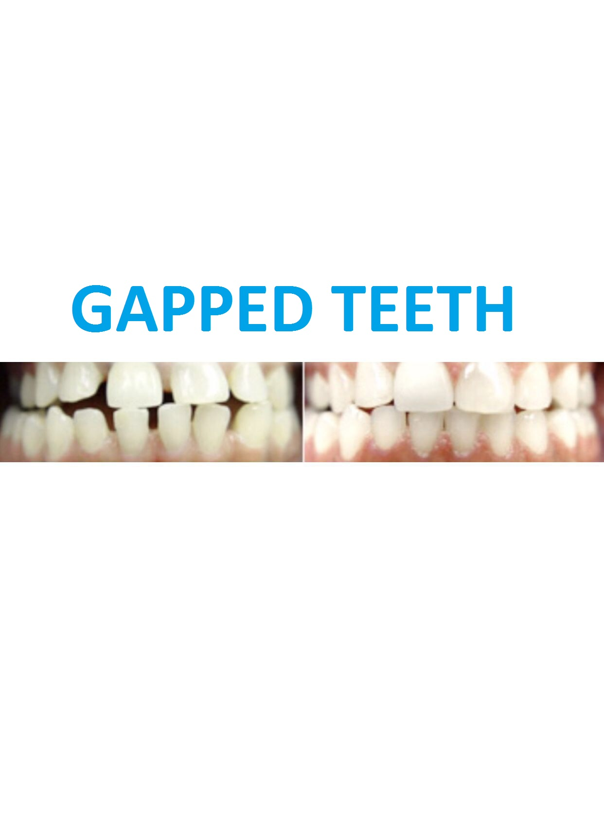 Gapped teeth B&A.jpg