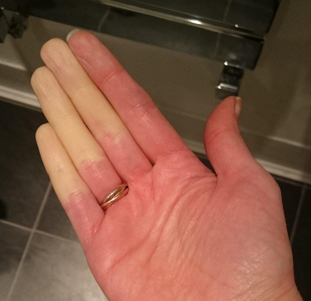 raynauds hands a.jpg