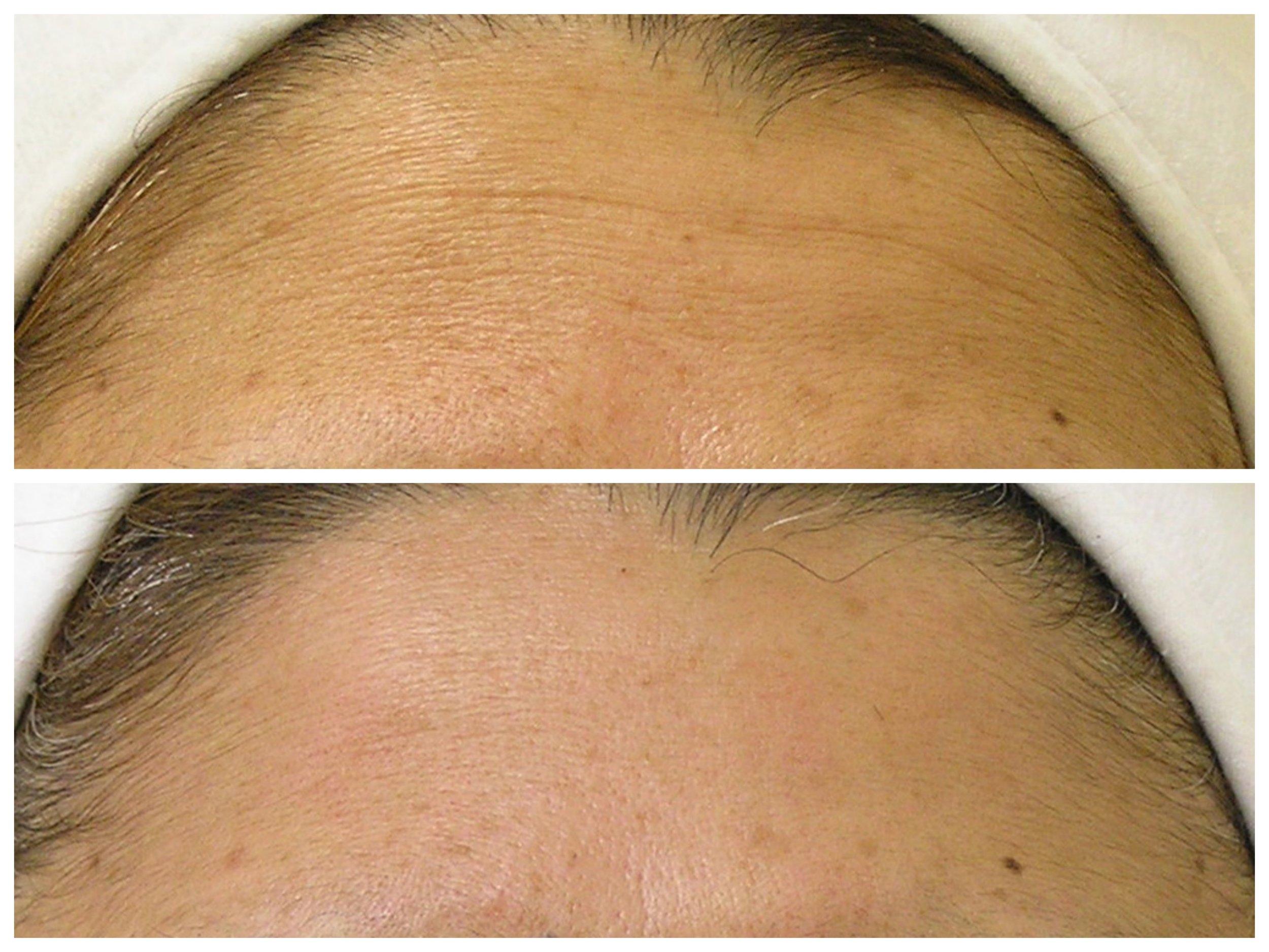 Fine Lines on Forehead B&A1.jpg