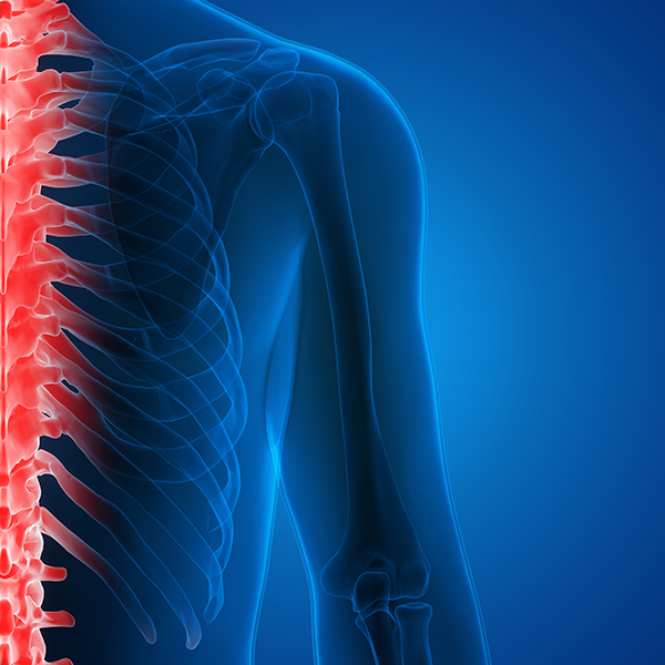 spine-physical-therapy-dr-kirol.jpeg