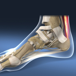 Achilles Tendonitis   Achilles Tendon Tear