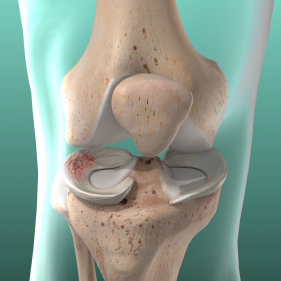 Meniscus Tear   Meniscus Tear Video