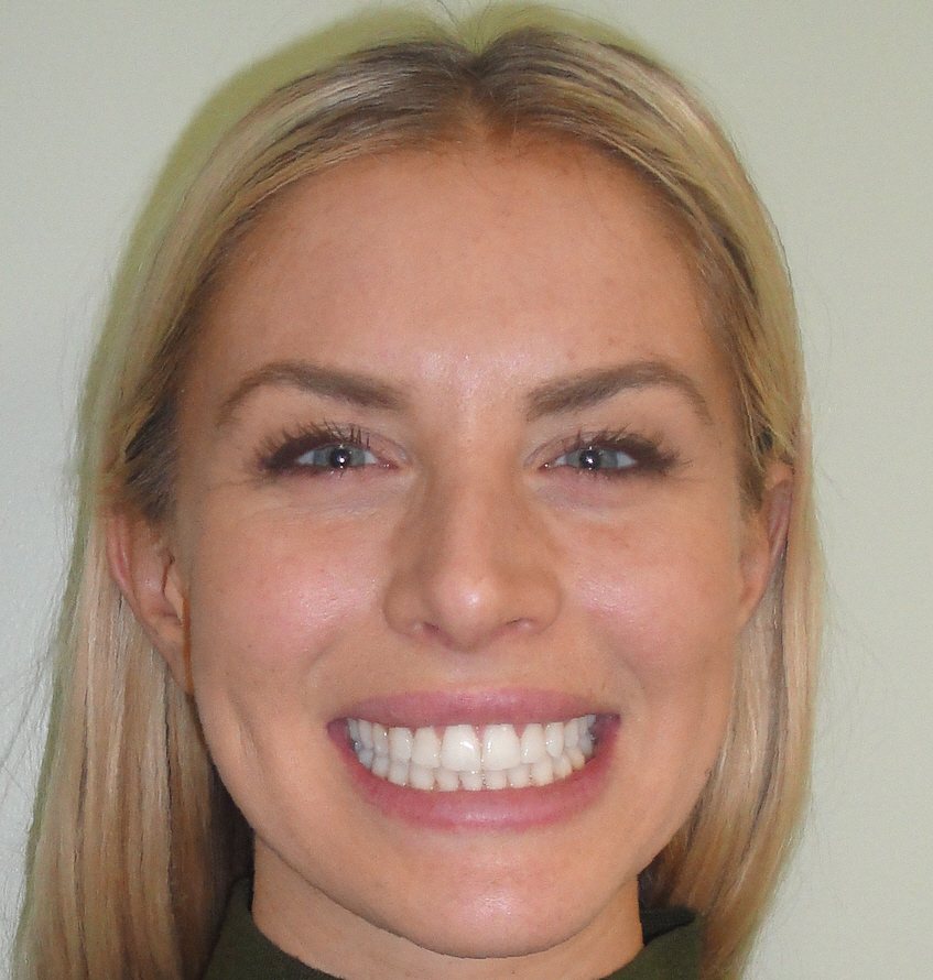 invisalign adult treatment for anna