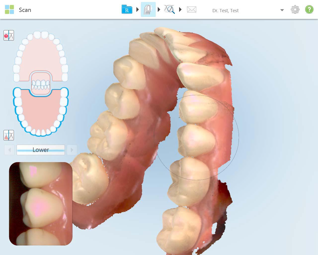 iTero Screenshot for Invisalign philadelphia