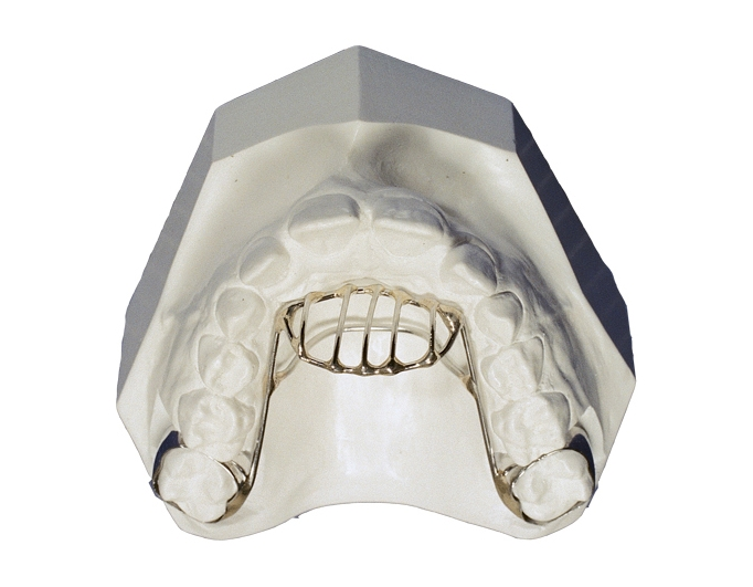 tongue-crib-orthodontic-appliance1.jpg
