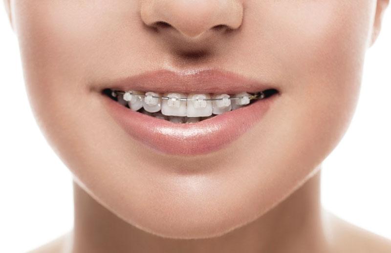 othodontist faqs at philadelphia orthodontics
