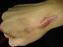 keloid scarring: notice the scar tissue spreading