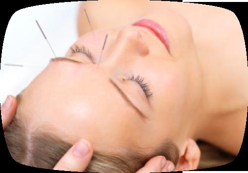 akupunktur.png