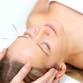 #akupunkturhjelper #bihuler #kosmetiskakupunktur #mentalhelse #stresset #fordittvelbefinnende #akupunktur #akupunkturhosanncharlotte