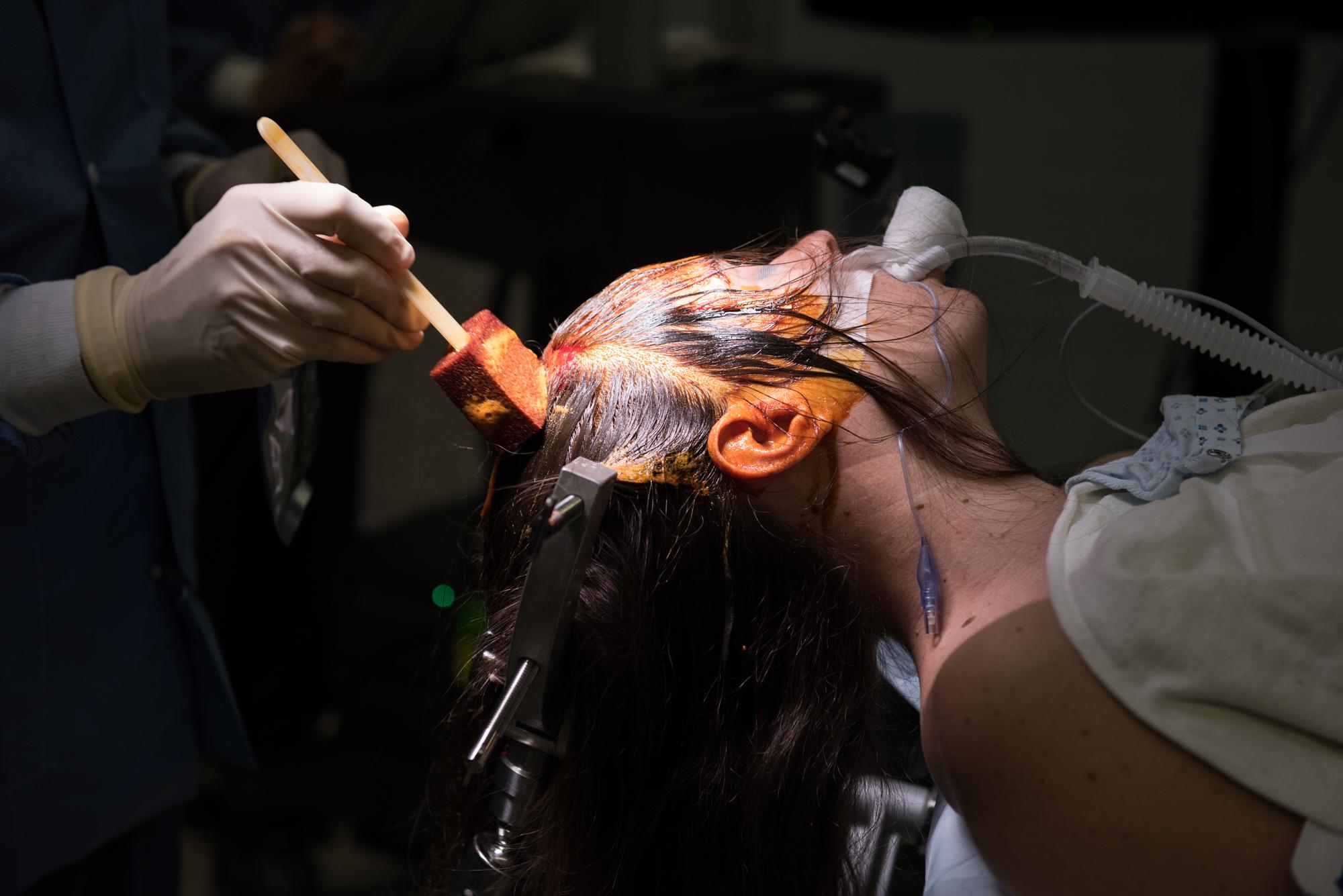 3D_Brain_Surgery_01.jpg