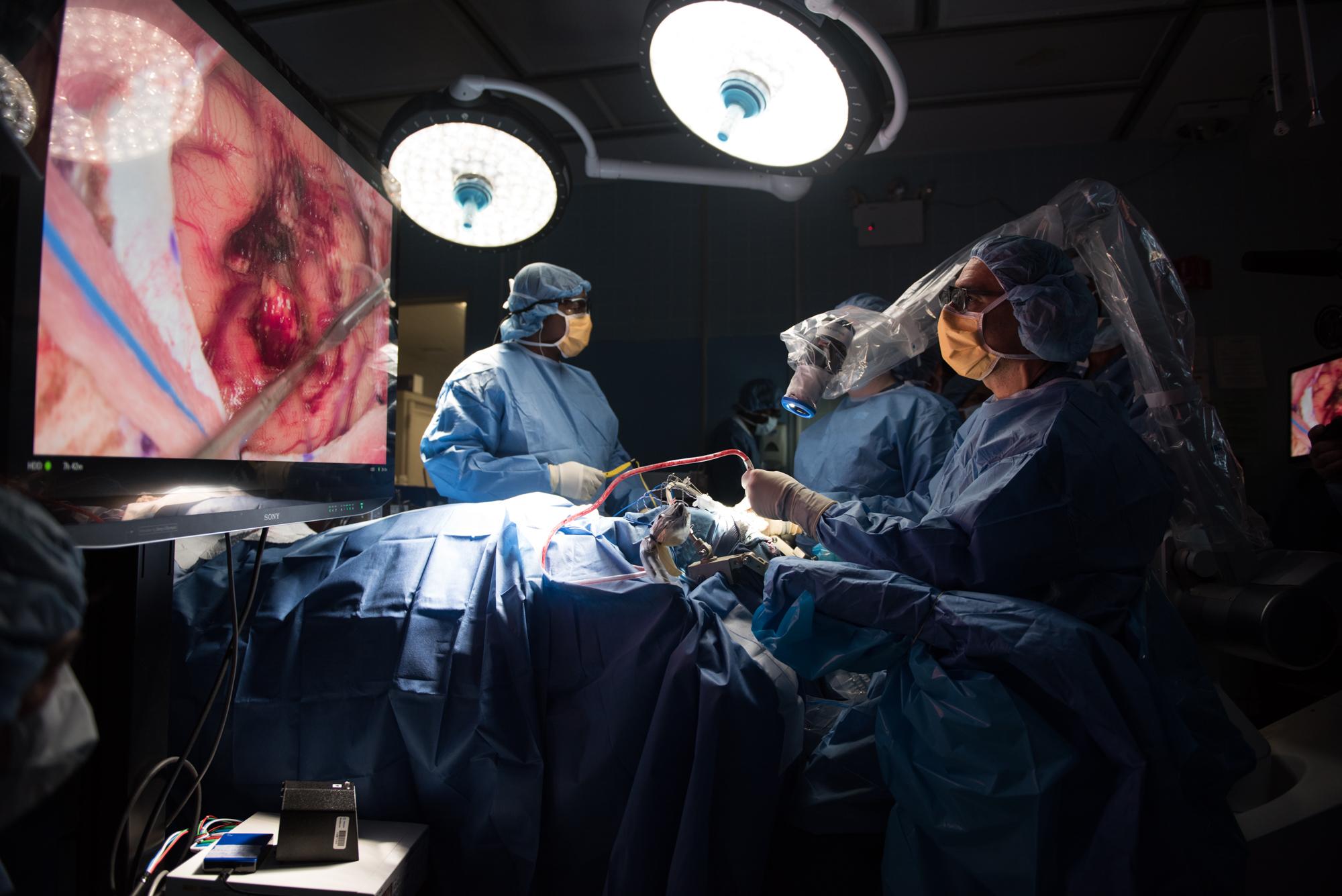 3D_Brain_Surgery_04.jpg