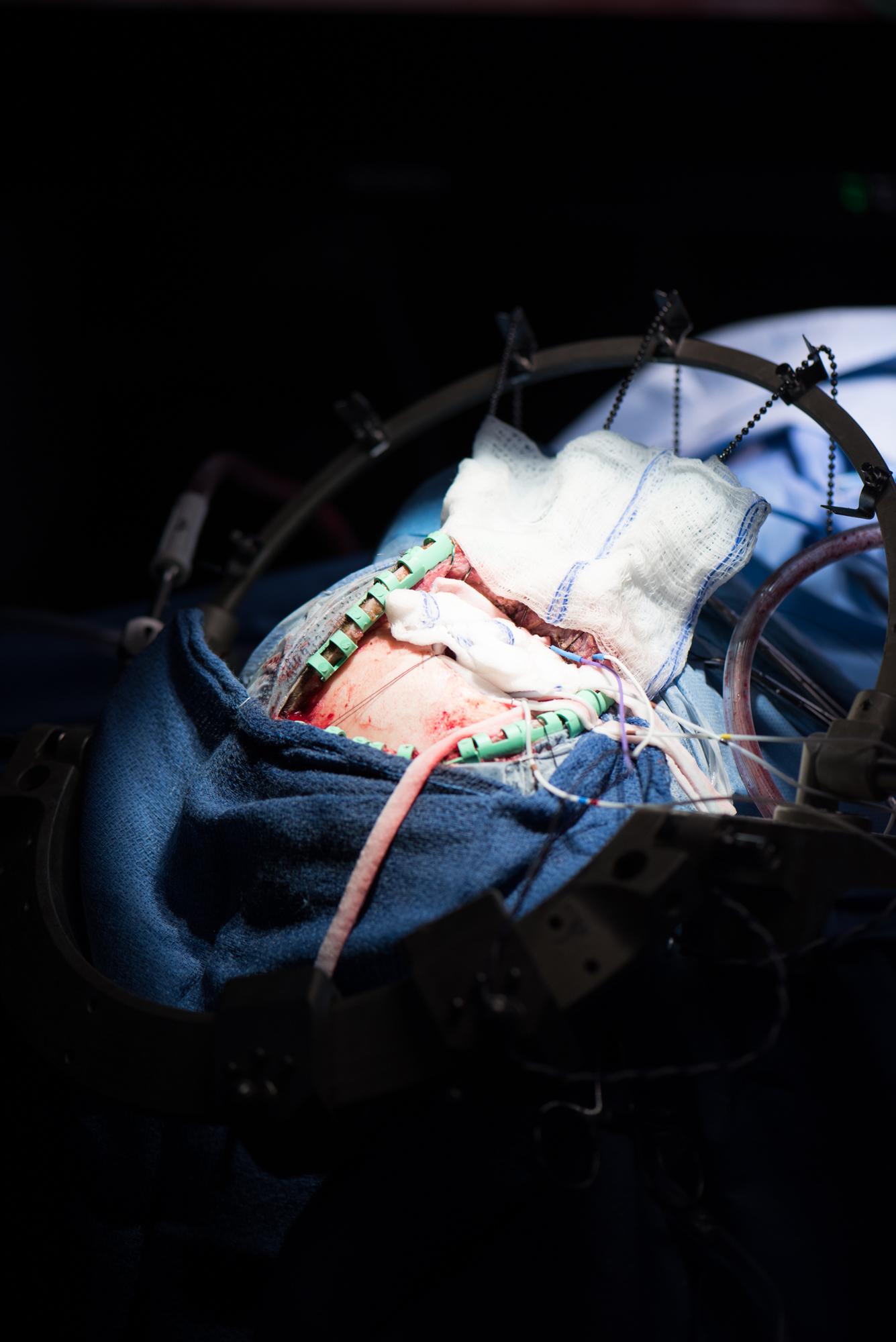 3D_Brain_Surgery_10.jpg
