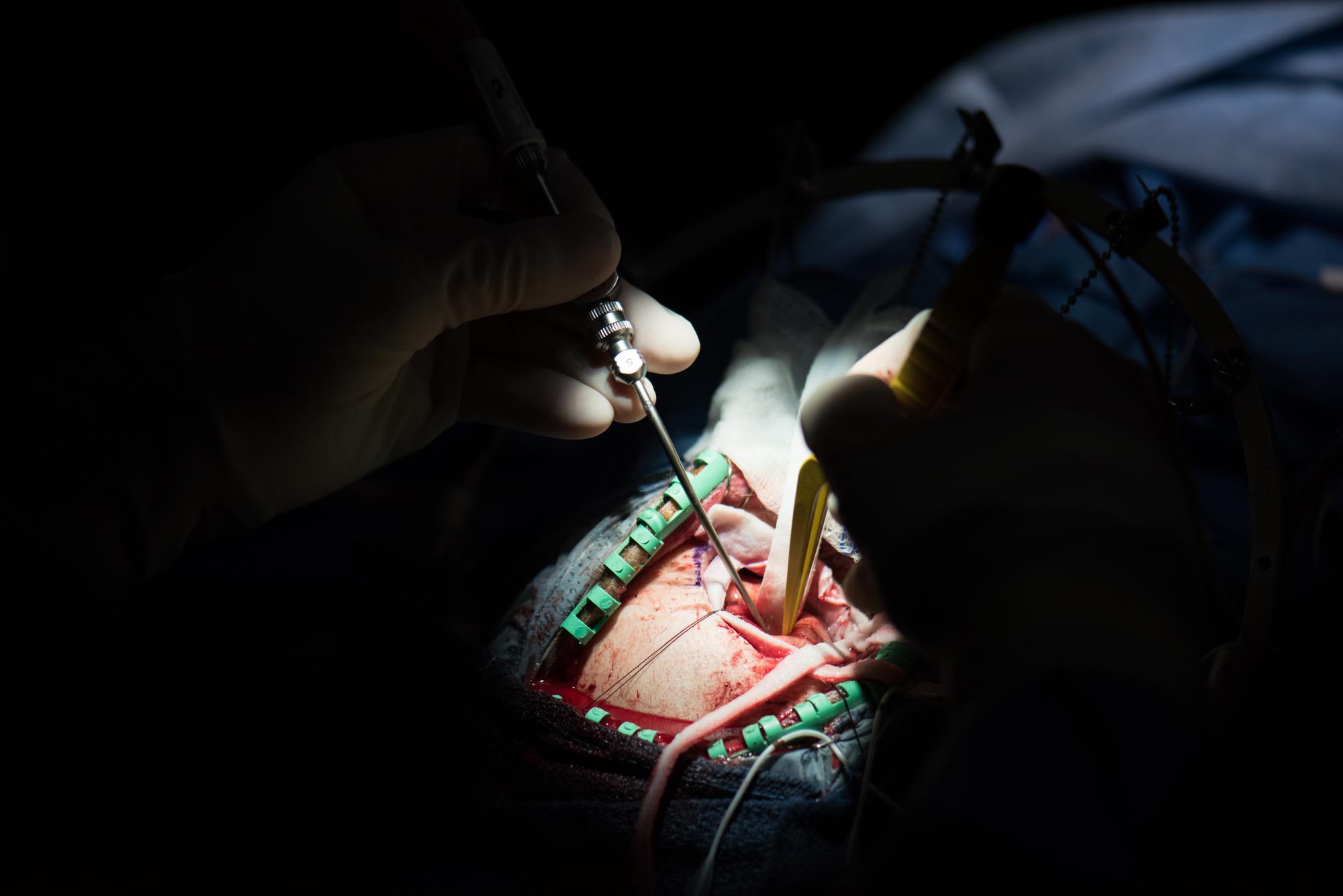 3D_Brain_Surgery_12.jpg
