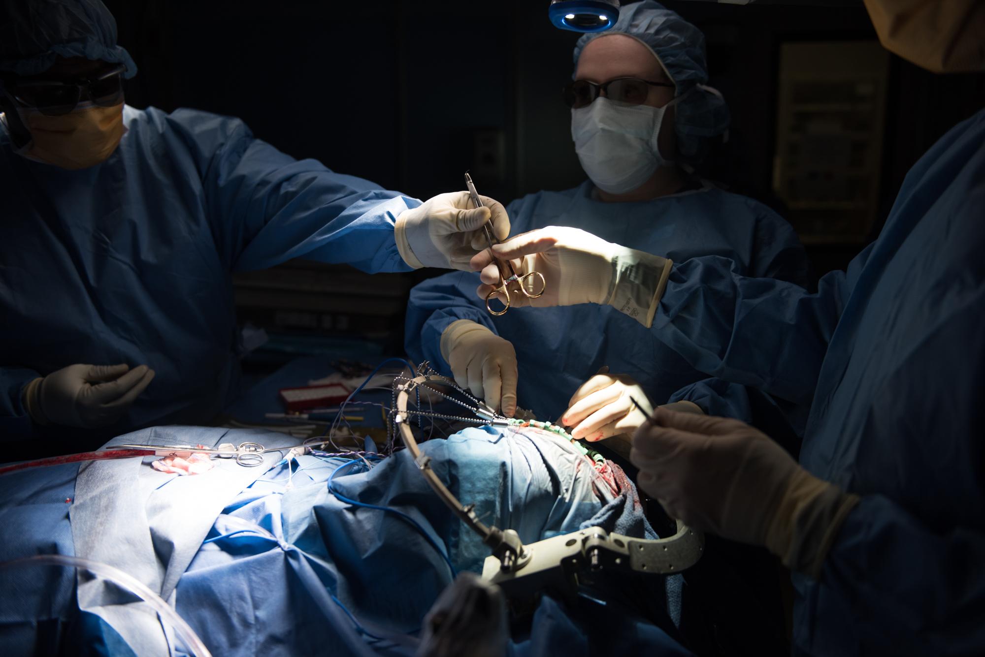3D_Brain_Surgery_17.jpg