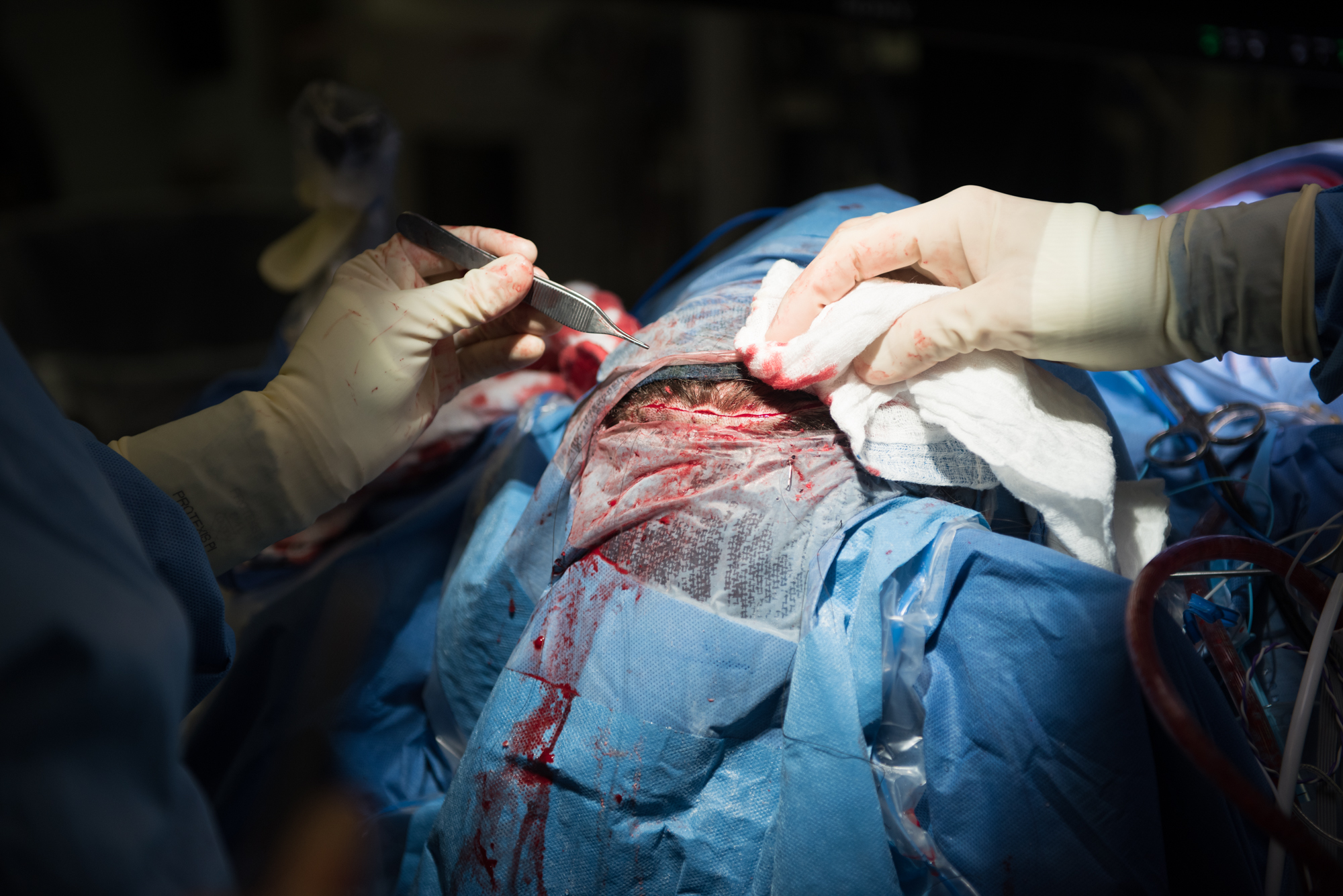 3D_Brain_Surgery_23.jpg