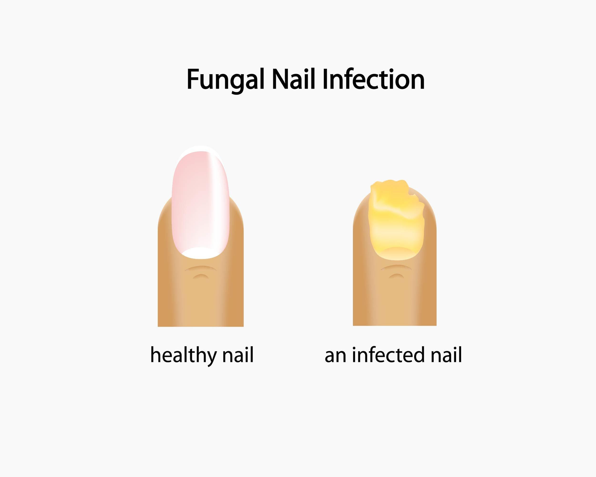 fungal toenail doctor gaithersburg md