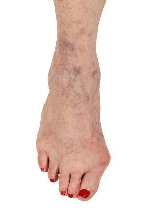 17085638_S_woman_bunion_toes_nail_polish.jpg