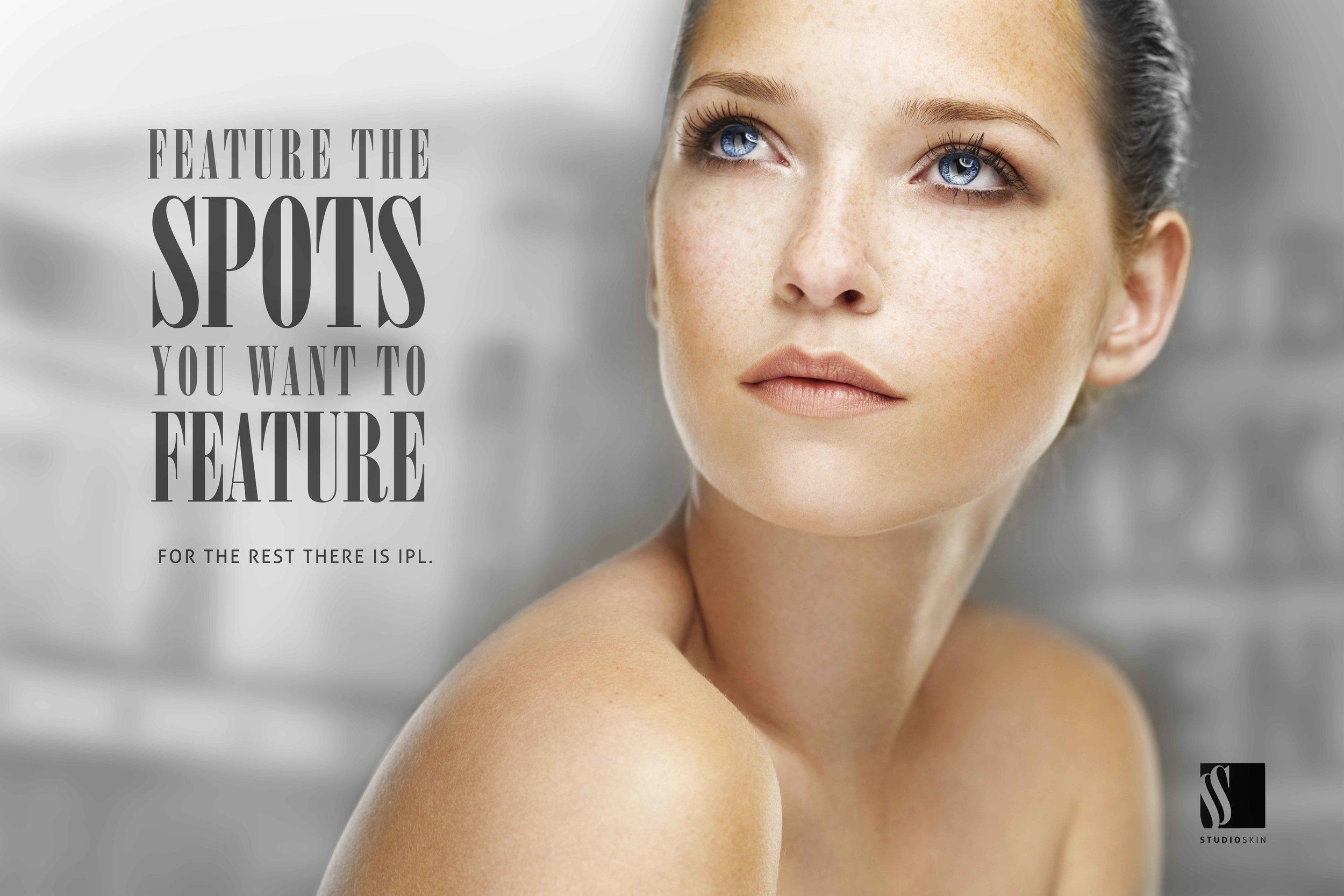 reduce-age-spots-sun-spots-regina