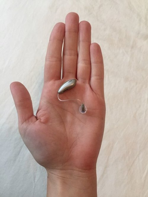 IT HAPPENED TO ME: I'm 27 and I Just Got Hearing Aids