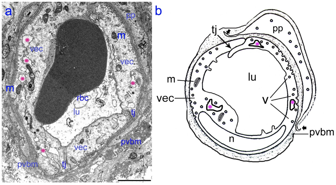 The BLB in a Meniere's disease capillary. a) Capillary located in the stroma of the macula utricle from a Meniere's subject (55-year-old-male). The lumen (lu) of the capillary is narrow, vascular endothelial cells (vec) are swollen and the cytoplasm is vacuolated (pink asterisks). b. Diagram showing the alterations in the swollen vec, microvacuoles are also abundant (v). Abbreviations, rbc: red blood cells, tj: tight junctions, m: mitochondria, n: cell nucleus, pp: pericyte process; pvbm: perivascular basement membrane. Bar is 2 microns.