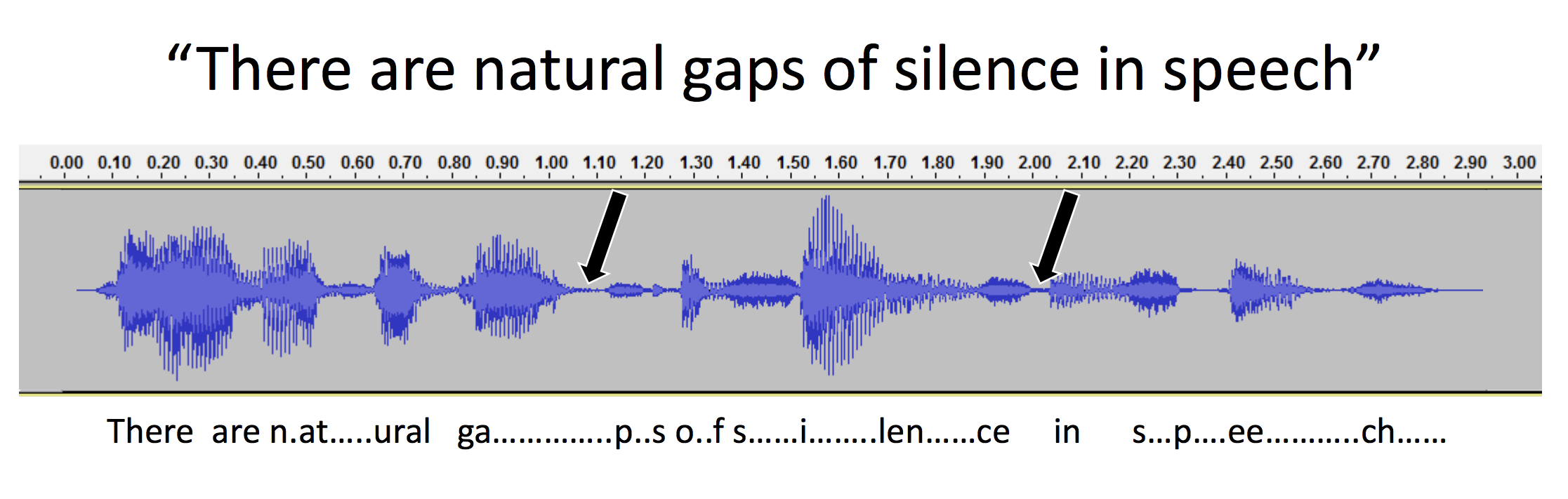 This digital oscilloscope representation of speech, with pauses, shows that gaps as short as a few milliseconds are used to separate words and syllables. According to Frank Musiek, Ph.D., CCC-A, a professor of speech, language and hearing sciences at the University of Arizona, people with some kinds of hearing difficulties require longer than normal gap intervals in order to perceive them.    Credit: Frank Musiek