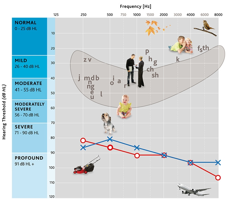 An audiogram showing a profound bilateral (in both ears) hearing loss. Source:    Cochlear