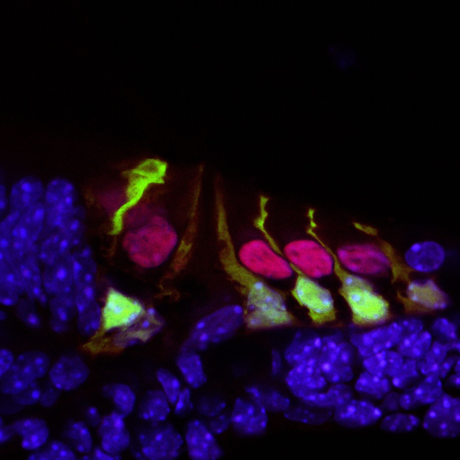 Hair cells in the mouse cochlea courtesy of the lab of Hearing Restoration Project (HRP) member Andy Groves, Ph.D., Baylor College of Medicine.