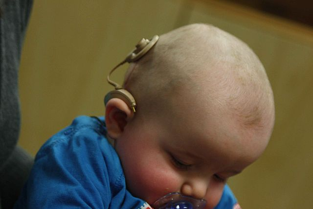 Infant_with_cochlear_implant.jpg