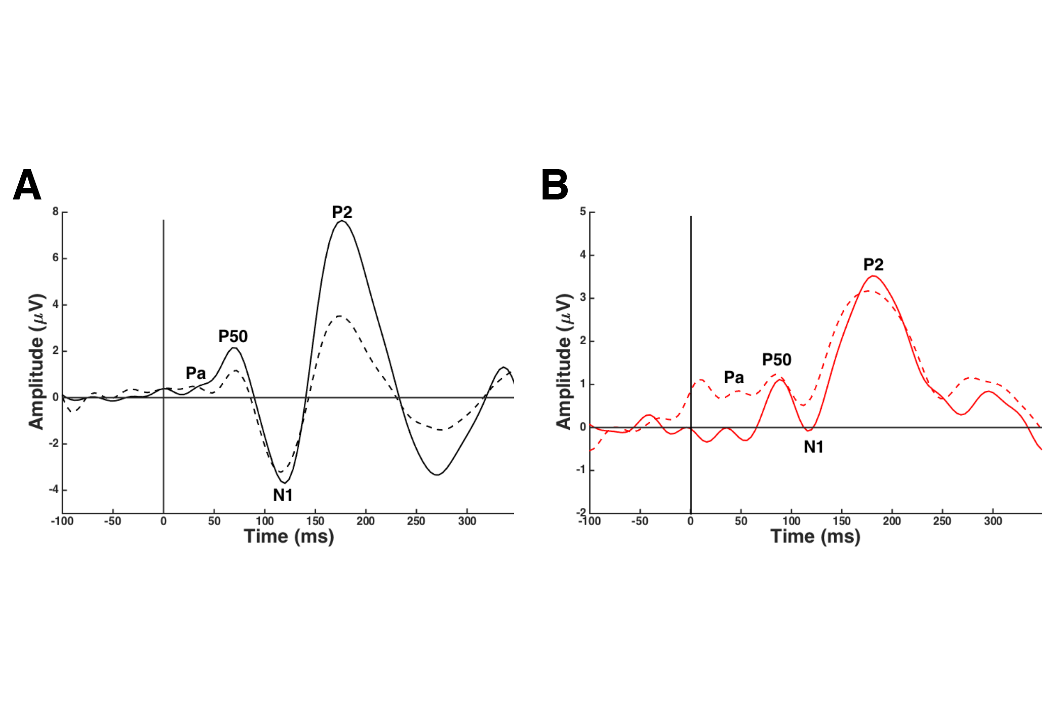 CAEP gating waveforms in A) a typical-hearing subject without tinnitus and B) a typical-hearing subject with tinnitus. The solid line represents the CAEP response to the first stimulus (S1) in a tonal pair, and the dashed the CAEP response to the second stimulus (S2) in a tonal pair. Typical gating is observed when CAEP S2 amplitude is lower compared with CAEP S1 amplitude (A). Atypical gating occurs when CAEP S2 amplitude is equal to or larger than CAEP S1 amplitude (B).