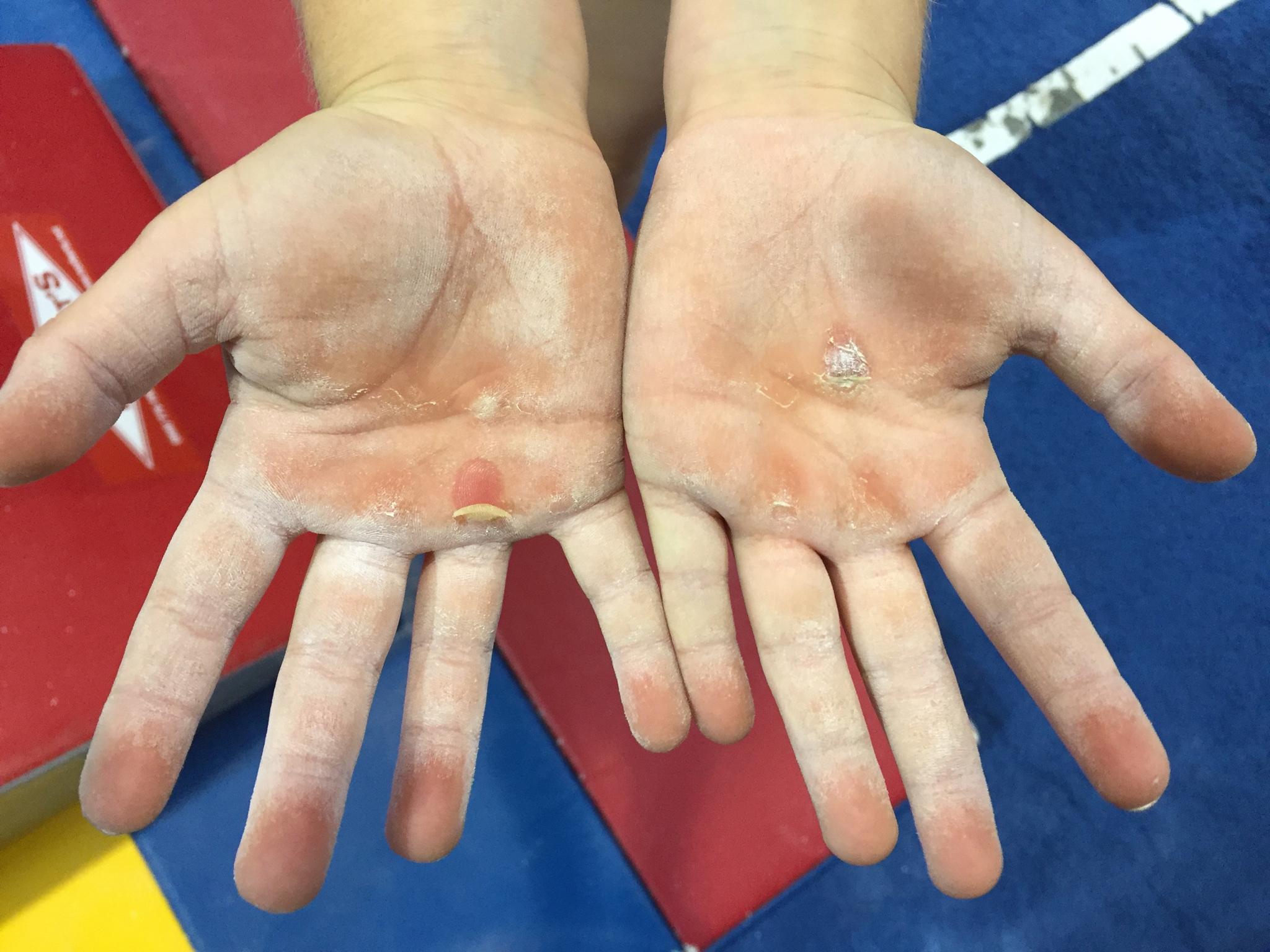 tm-hands4.jpg