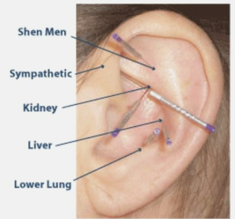 6 Reasons - To Experience Auricular Acupuncture