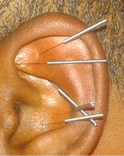 Ear - Acupuncture Changed My Life