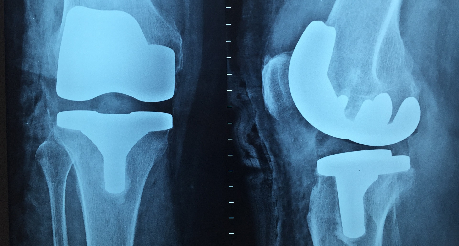 Photograph: X-ray images of two knees with steel knee replacement hardware shown on both sides.