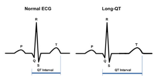 """Figure 1:  A comparison of a normal electrocardiogram to that of a person with Long-QT syndrome. In Long-QT, the time it takes for the heart to """"reset"""" after a depolarization is extended. (Source: MMRI)"""
