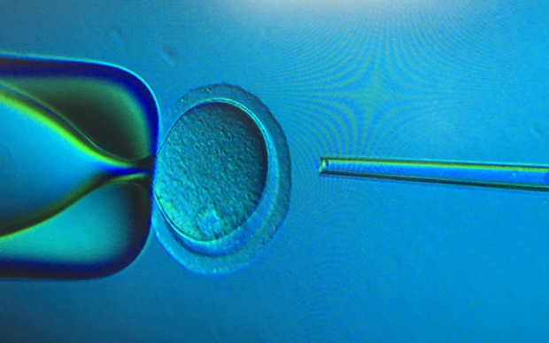 View from the computer monitor during intracytoplasmic sperm injection into a mouse egg. Photo credit: Katie Wozniak.