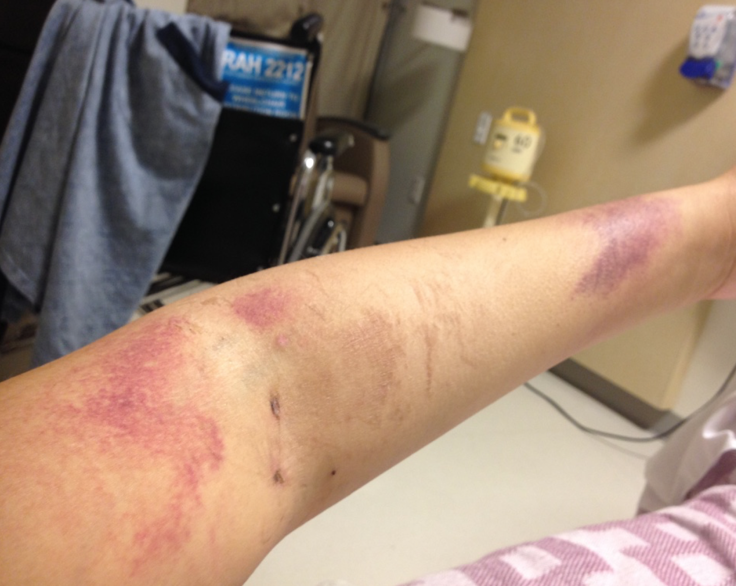 My bruised arm as a result of the blood-work required 3 times per day as my body healed.