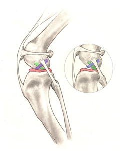 Figure 1. Illustration of the anatomy of the dog's knee: Blue = cranial cruciate ligament; Red = meniscus; Green = caudal cruciate; the insert shows a ruptured cranial cruciate ligament (also note that the shinbone is displaced forward and is crushing the meniscus)   Image from  www.acvs.org