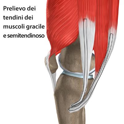 Chirurgia Artroscopica del ginocchio