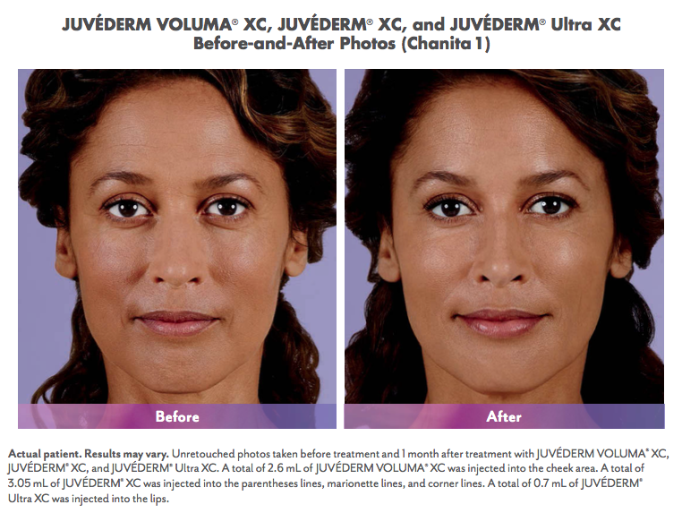 juvedermcollection2.png