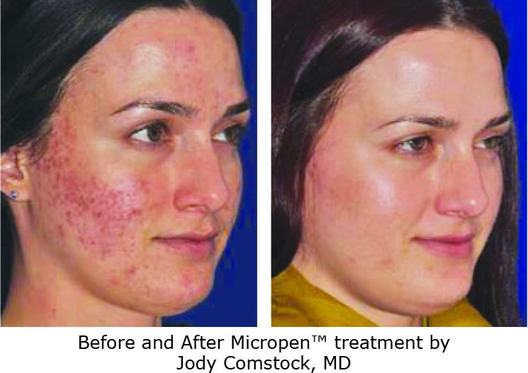 BA-acne.jpeg